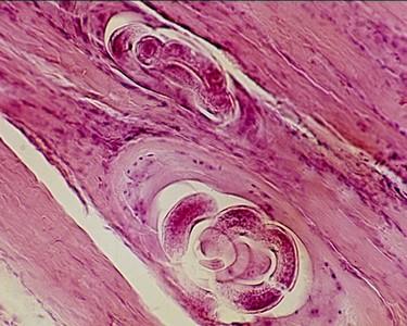 A trichinózissal fertőzött húst semlegesítik