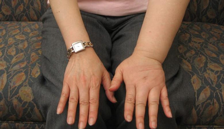Férgek gyermekkezelési tünetei. Milyen bélférgek kerülhetnek szervezetünkbe?