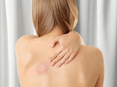 gombás fertőzés kezelése a testben gyógyszerek)