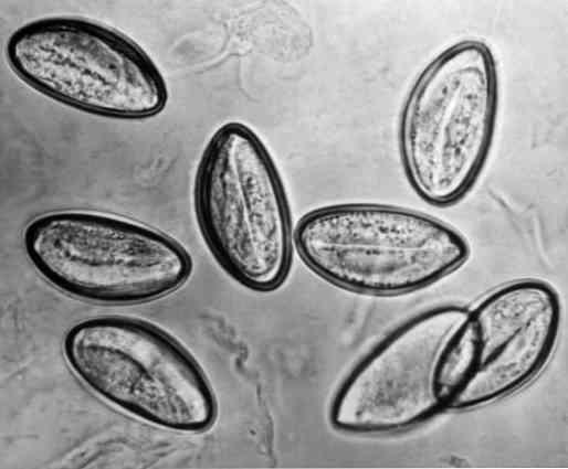 enterobiosis fertőzés)