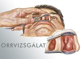 csecsemő nátha tünetei)