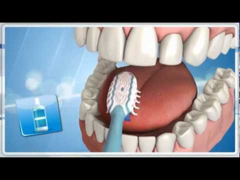 Rossz lehelet a gyomor-bél traktus betegségeiben, A kellemetlen szag megjelenésének oka
