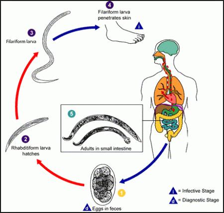 ankilostomiasis diagnózis)