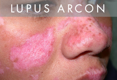 a lupus parazitakezelése