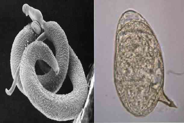 A parazita közbenső gazdaszervezete, Férgek, kukacok az élő testben...