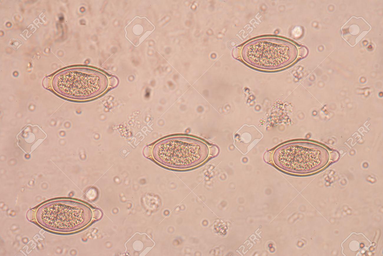 Trichocephalosis geohelminth
