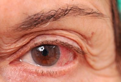 szem parazita gyógyszer