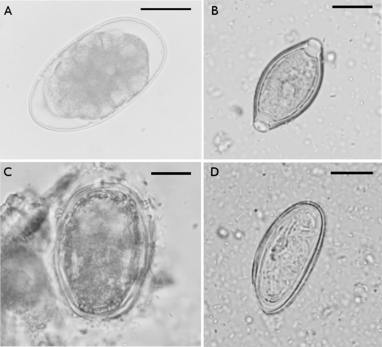 Enterobiasis autoinvasion. Pinworms kezelése: tünetek és gyógyszerek - Belek