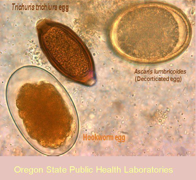 helminth tojások diftillobothriasis