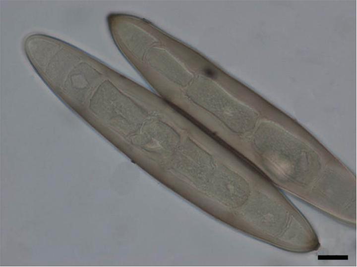 klasifikasi helminthosporium turcicum)
