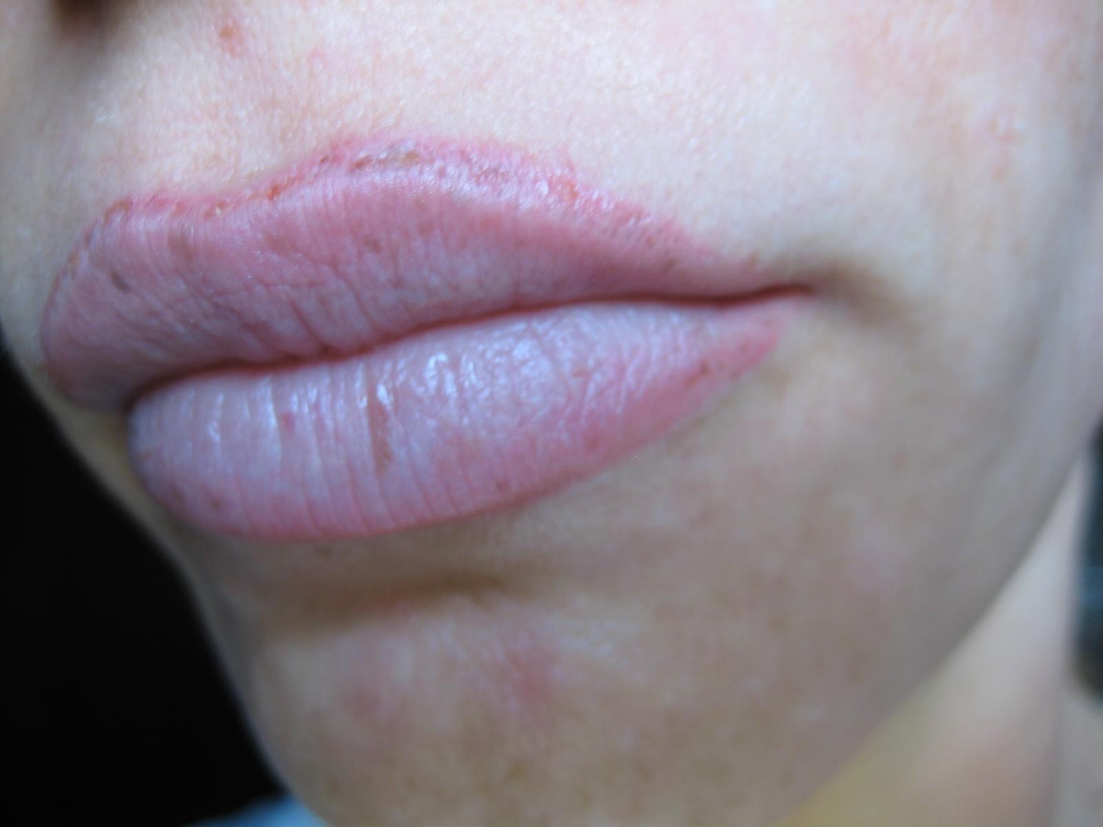 a száj szaga magától eltűnt trichinella állattan