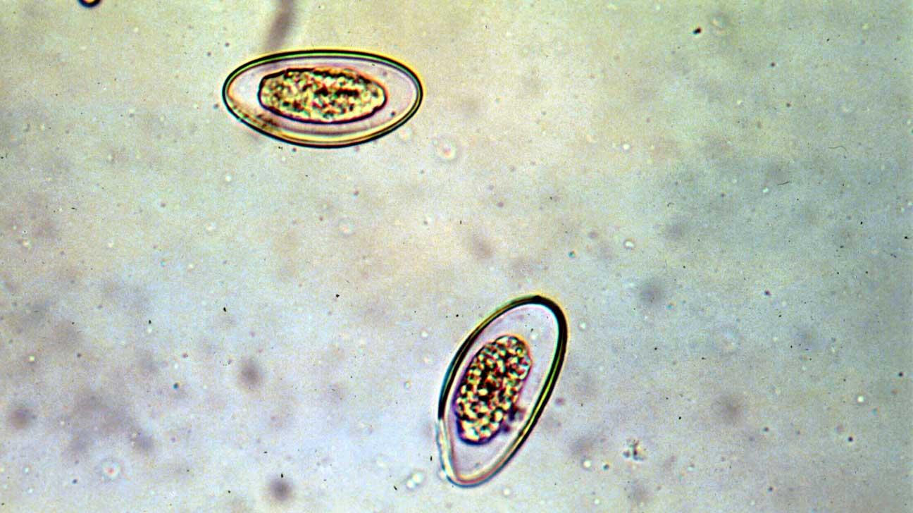 hogy néz ki a pinworms)