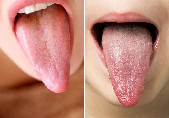 lepedék a nyelven kezelési rend minden típusú parazitához