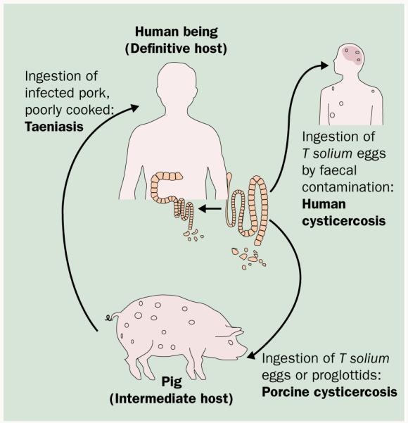 fertőzés teniosis