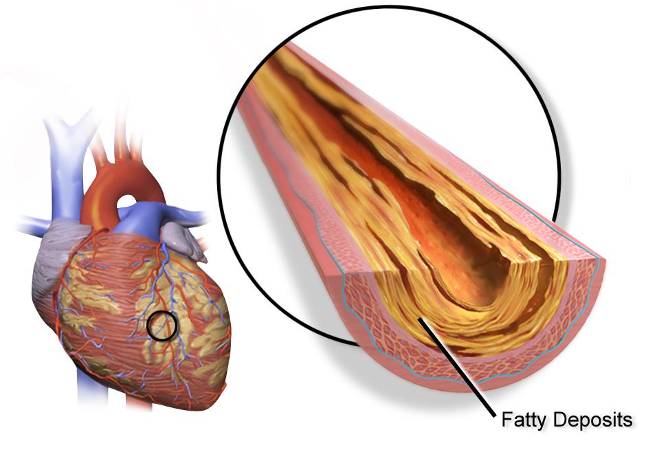 Szívelégtelenség ki az emberekben 65 - Capital Kardiológia Associates