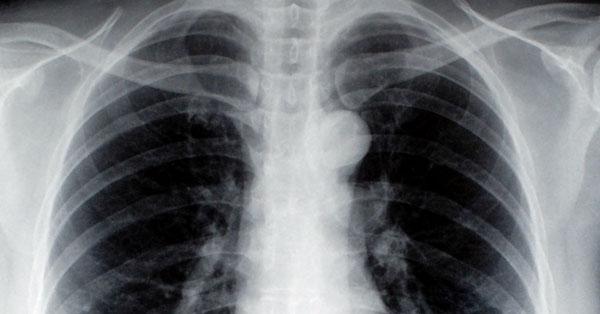 tüdőbetegség tünetei vannak felnőttek férgek