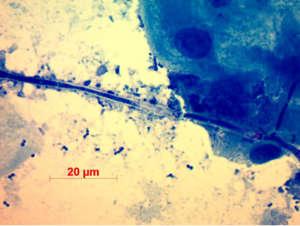 kenet transzkriptum mikroszkópos vizsgálata