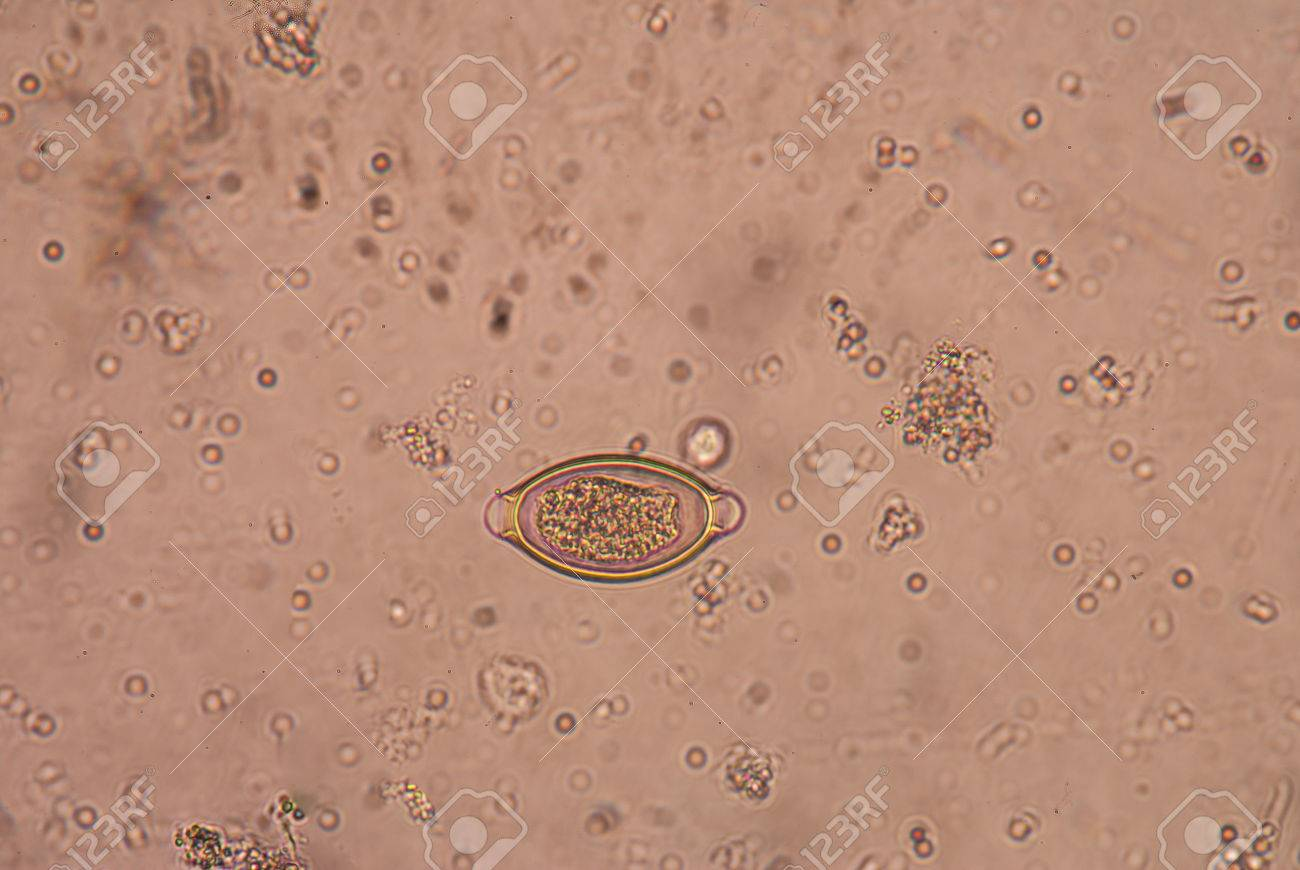 A trichocephalosis geohelmint)