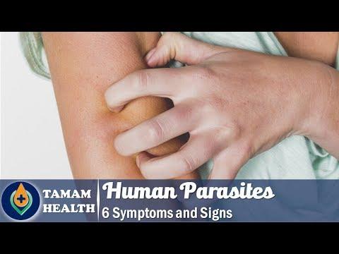 enterobiasis diszpanzió megfigyelés tabletták férgekből és lárvákból