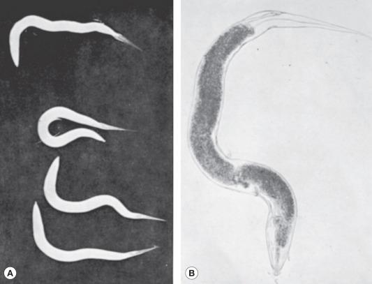 enterobiosis diagnózis)