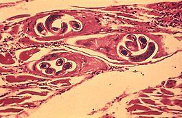 trichinosis izomfájdalom