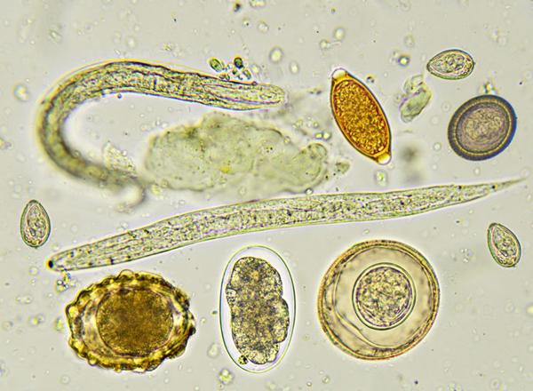 fascioliasis helminth)