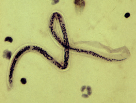 biológiai platyhelminthes és fonálféreg