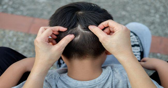 férgek a gyermek gyógyszeres kezelésében