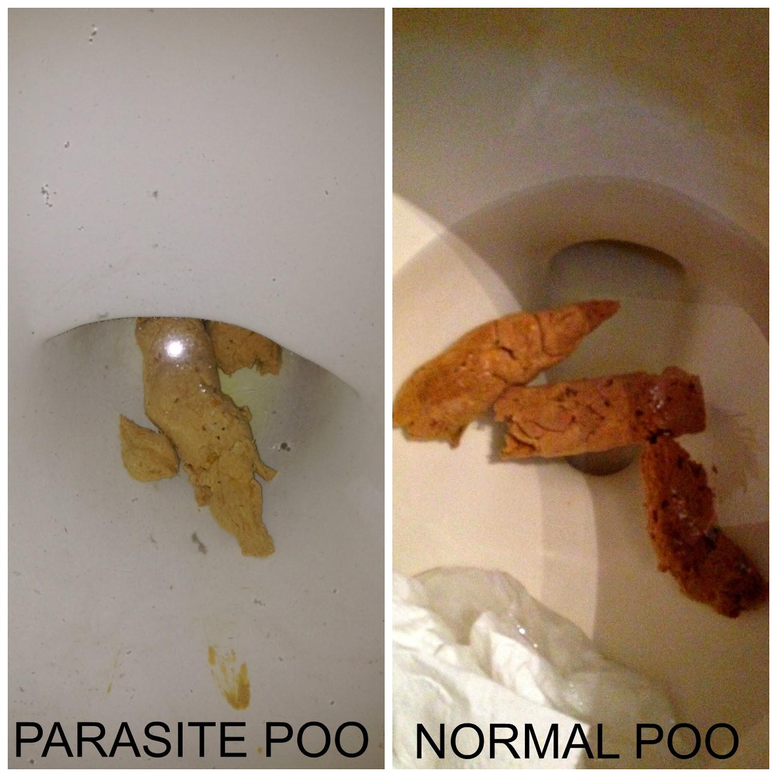 A bőr alatti paraziták jelei az embereknél
