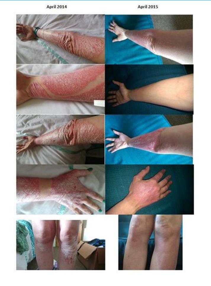 helminth psoriasis kezelés)