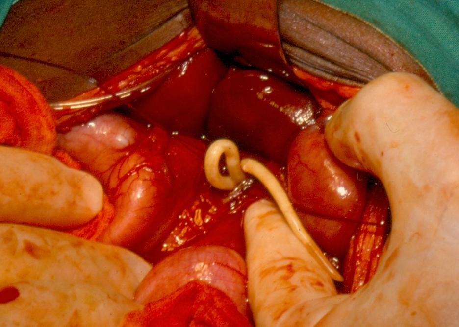 helminthiasis worms kezelés)