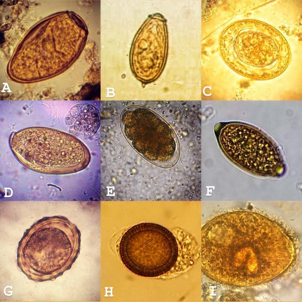 Élősködők: Bélféreg tünetei Kötél parazita hogyan lehet megszabadulni