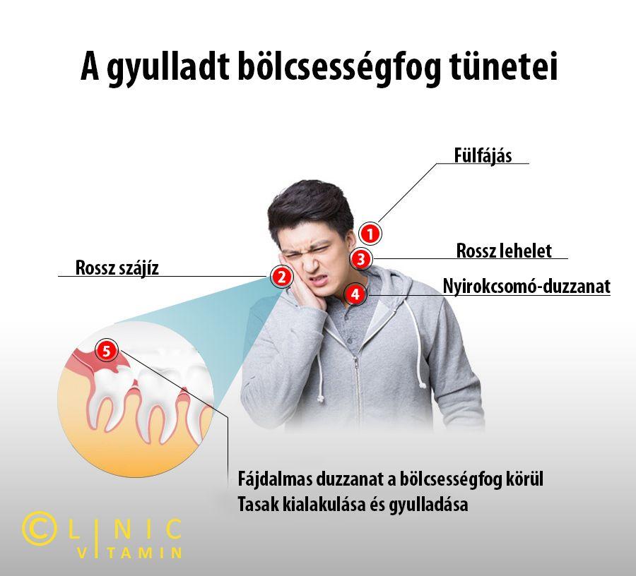 dioxidin szájszag