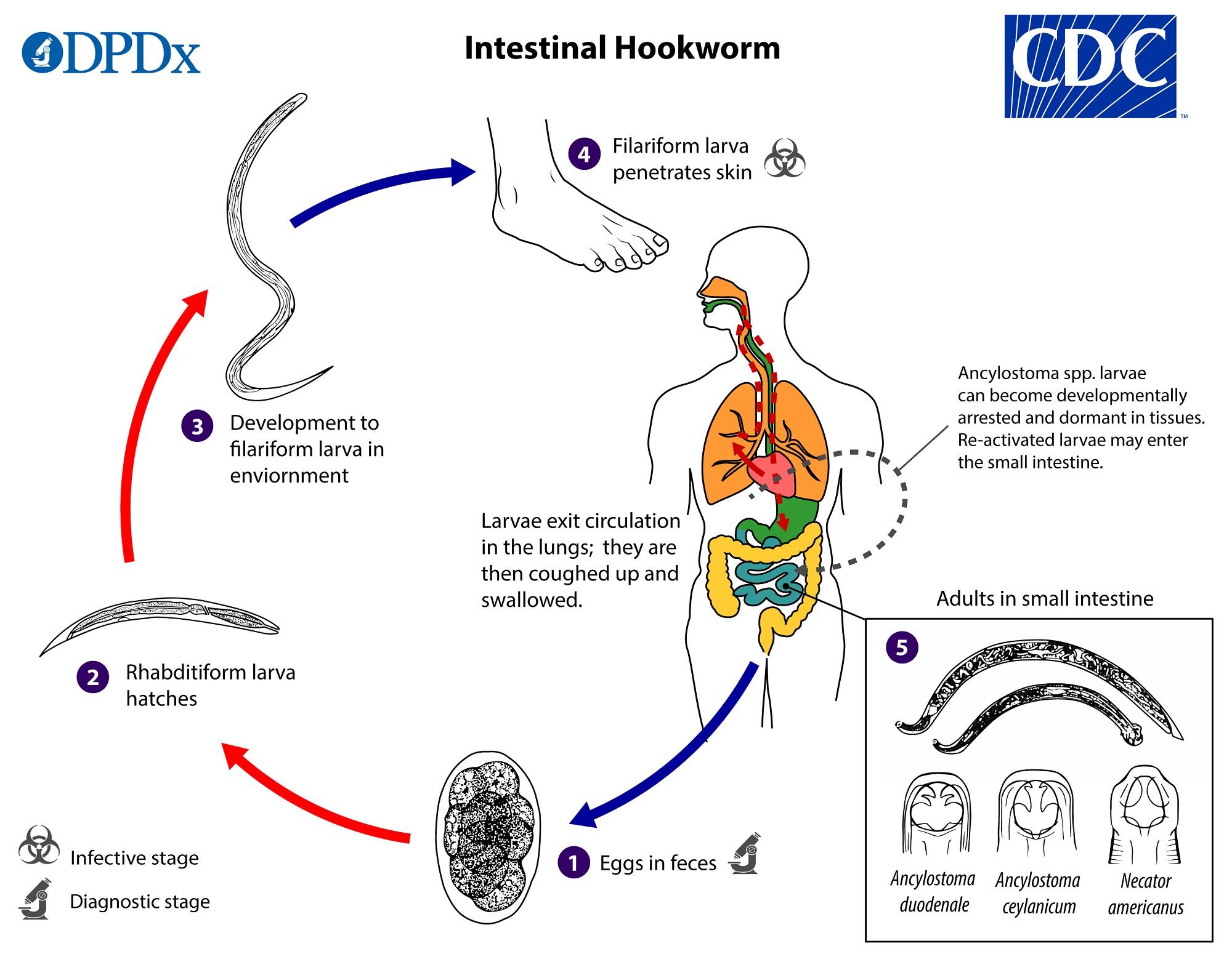 hookworm hookworm)