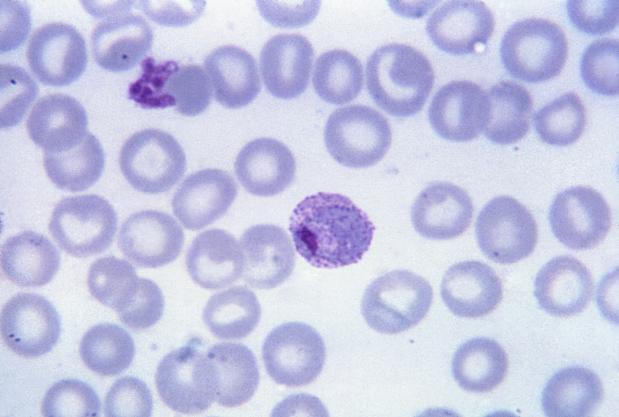 malária plazmodium laboratóriumi diagnosztikája