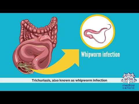 helminths gyógyszer vélemények pinworm tünetek 2 évesnél fiatalabb gyermekeknél