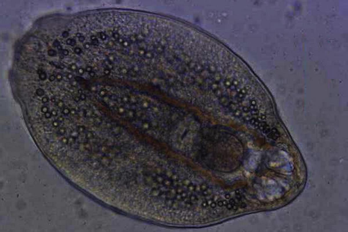 paraziták irányítják az agyadat az emberi papillóma vírus tünetei a nők kezelésében