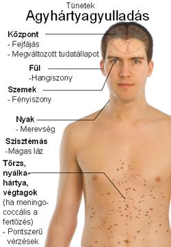 paraziták tünetei es kezelése felnotteknel)