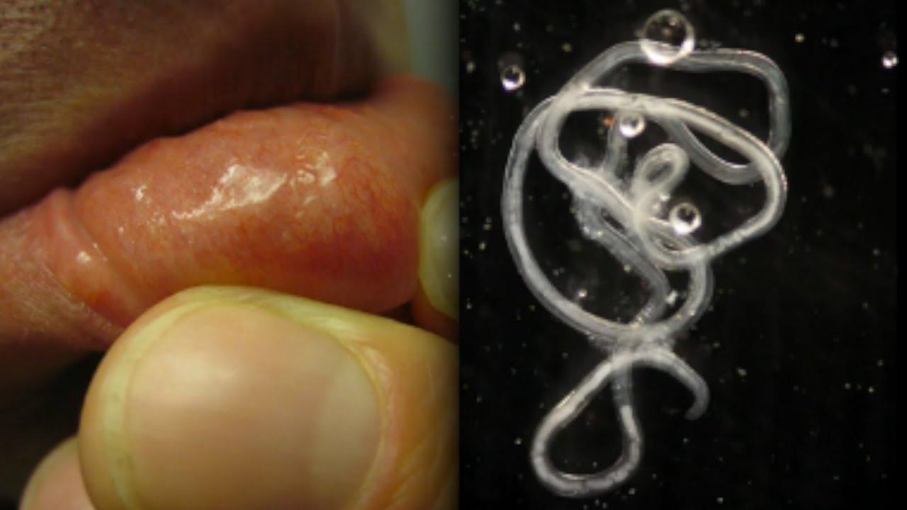 pinworm féreg eltávolító