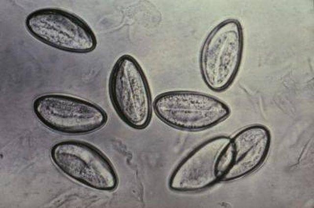 Mi tűnik a pinworm tojások? Képek a lefektetett tojásokról