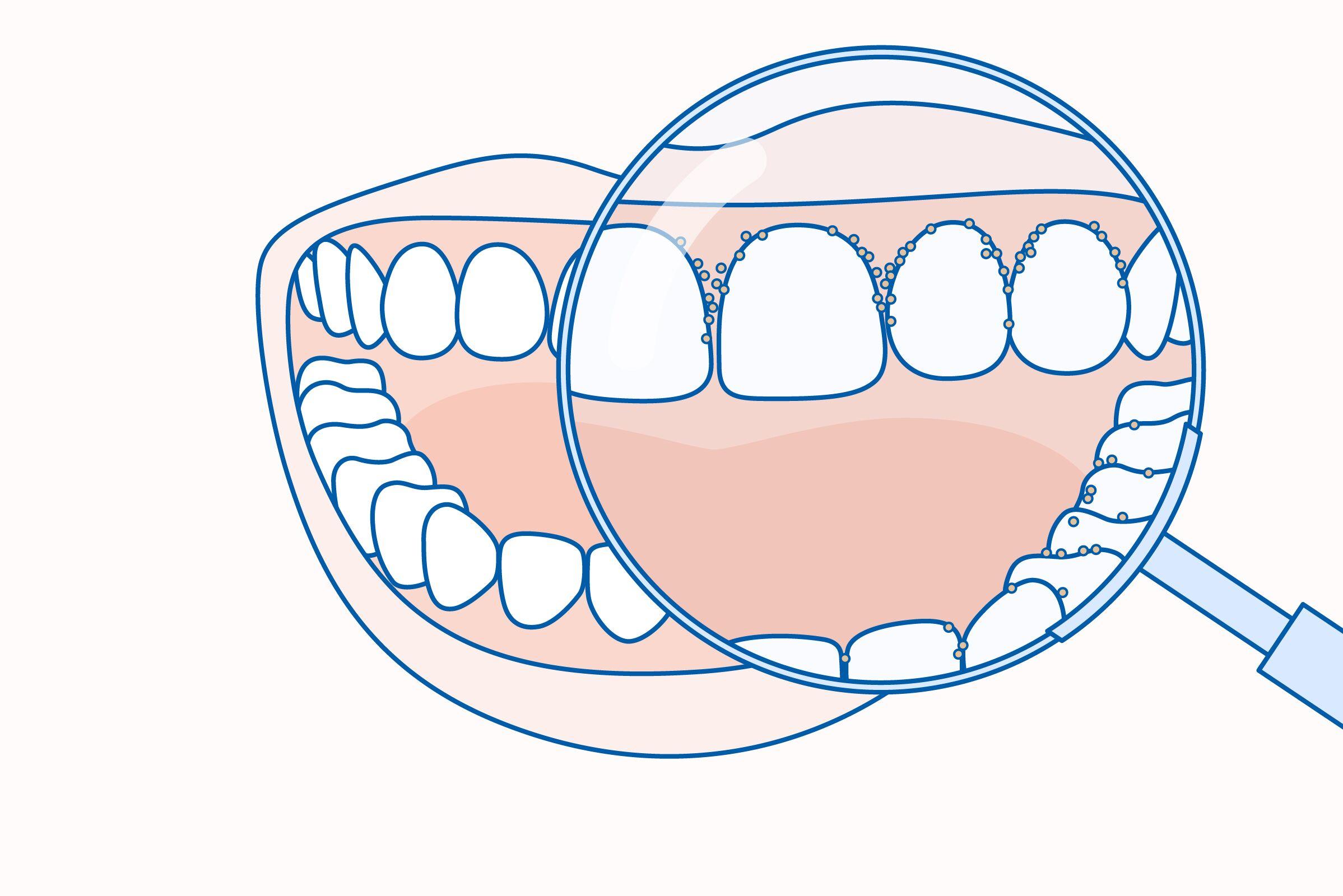 rossz lehelet periodontitisszel)