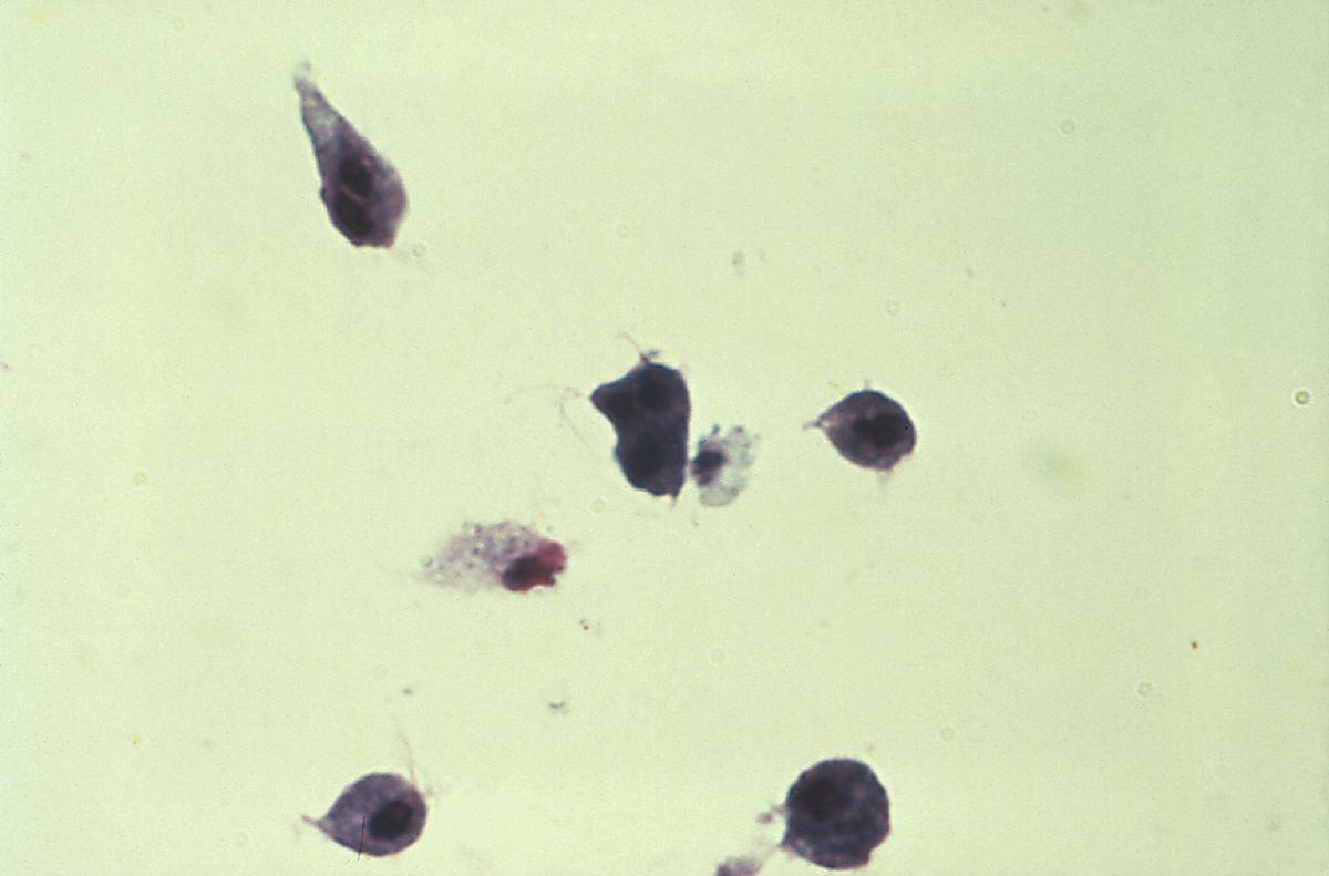 ureaplasma kezelés
