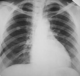 hogyan lehet ellenőrizni a tüdőben férgeket protozoan paraziták embereken tünetek