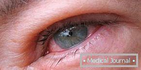 trichinózis gyógyszeres kezelés)