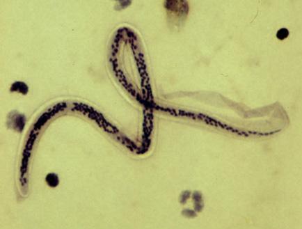 paraziták a harmadik világ országaiban
