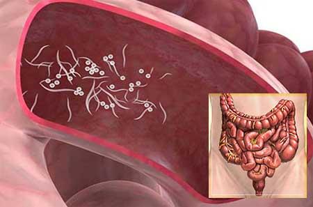 Pinworms felnőtteknél - tünetek és kezelés, A pinworms betegséget okoz - Pinworms felnőtteknél okoz