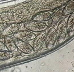 enterobiosis a klinikán asztrica férgek gyógyszere
