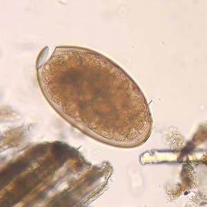gyógynövény készítmények paraziták megtisztítására típusú ektoparaziták emberben