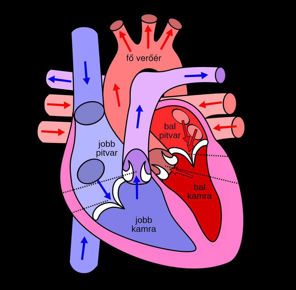 Alveoláris máj echinococcosis - Cirrózis