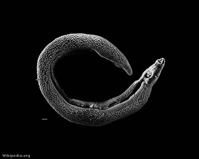 schistosomiasis peték a székletben
